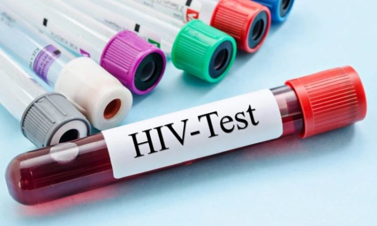 Hiv Test logo